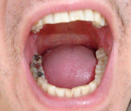 zo onthoudt een tandarts mensen